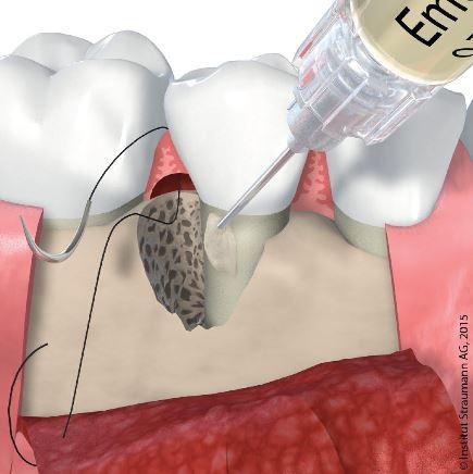 Zahnop Parodontitistherapie