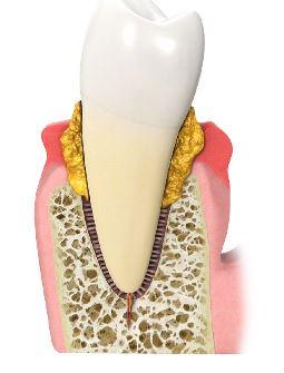Zahn Parodontitistherapie